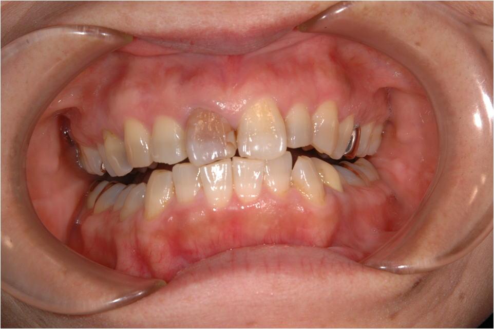 前歯の審美性の症例2A