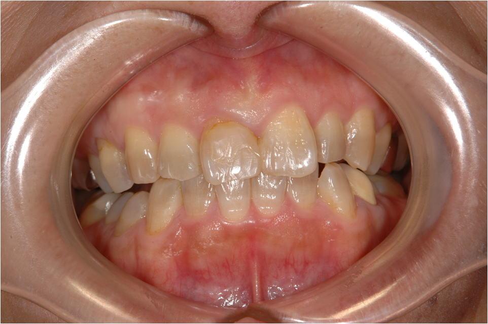 前歯の審美性の症例2B