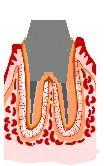 虫歯の治療法5