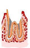 虫歯の治療法6