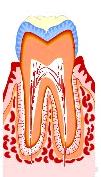 虫歯の治療法1