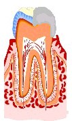 虫歯の治療法3