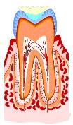 虫歯の治療法2