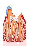 虫歯の進行3