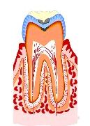 虫歯の進行2