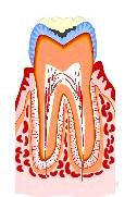 虫歯の進行1