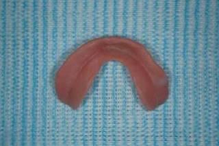 マイオモニターを使った義歯